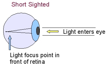 Simple explanations of how eye exercises work to improve vision the ccuart Choice Image